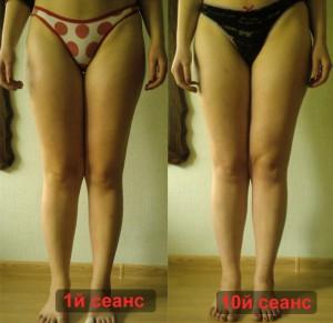 Результат антицеллюлитного массажа Минск