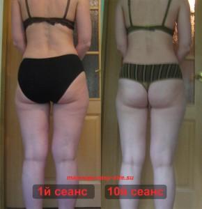 Результаты антицеллюлитного массажа Минск