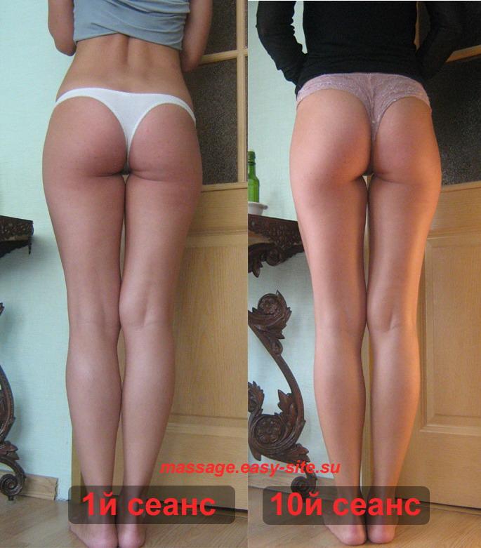 Фото результатов антицеллюлитного массажа Минск