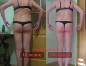 Фото результатов антицеллюлитного массажа Иры, Минск