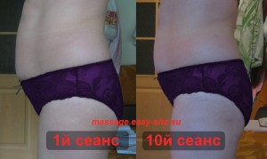 Фото результатов антицеллюлитного массажа Лены
