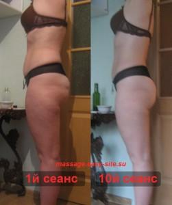 Фото результатов антицеллюлитного массажа Оксаны, Минск