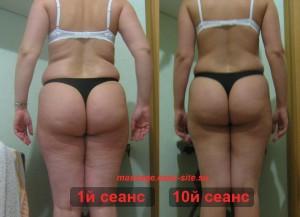 Фото результатов антицеллюлитного массажа Минск Татьяна