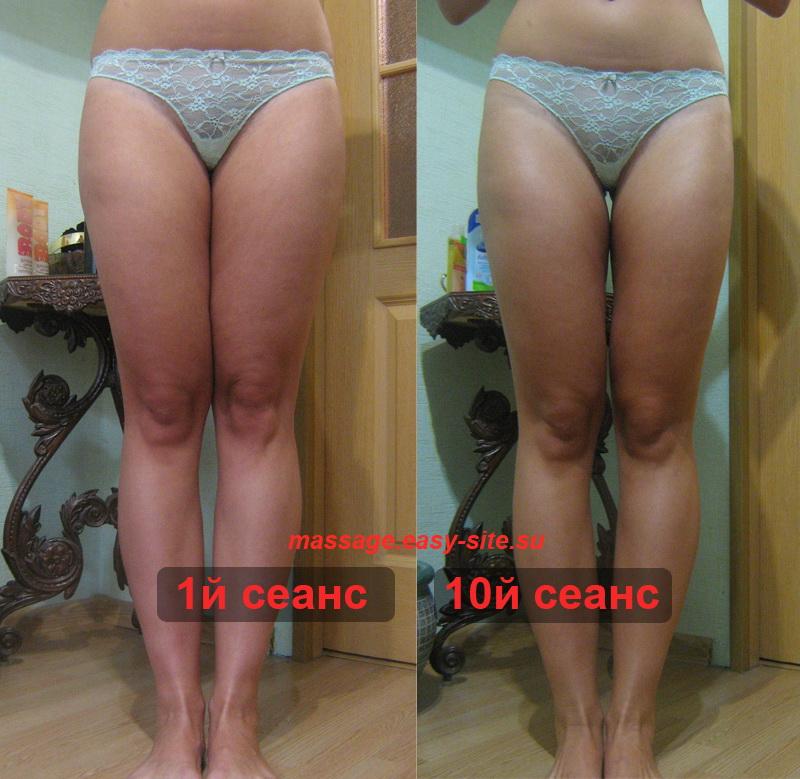 Фото результатов антицеллюлитного массажа Инны 2014
