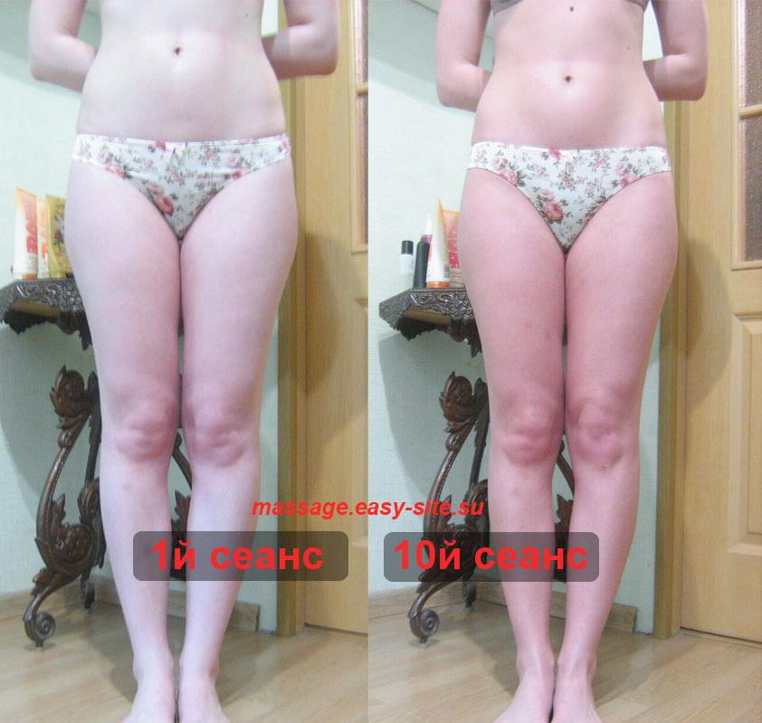Фото результатов антицеллюлитного массажа Анжелы 2015