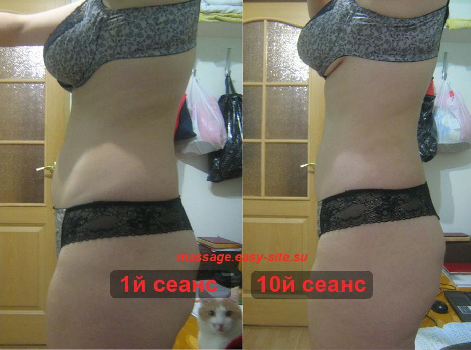 Фото результатов антицеллюлитного массажа Ольги 2015