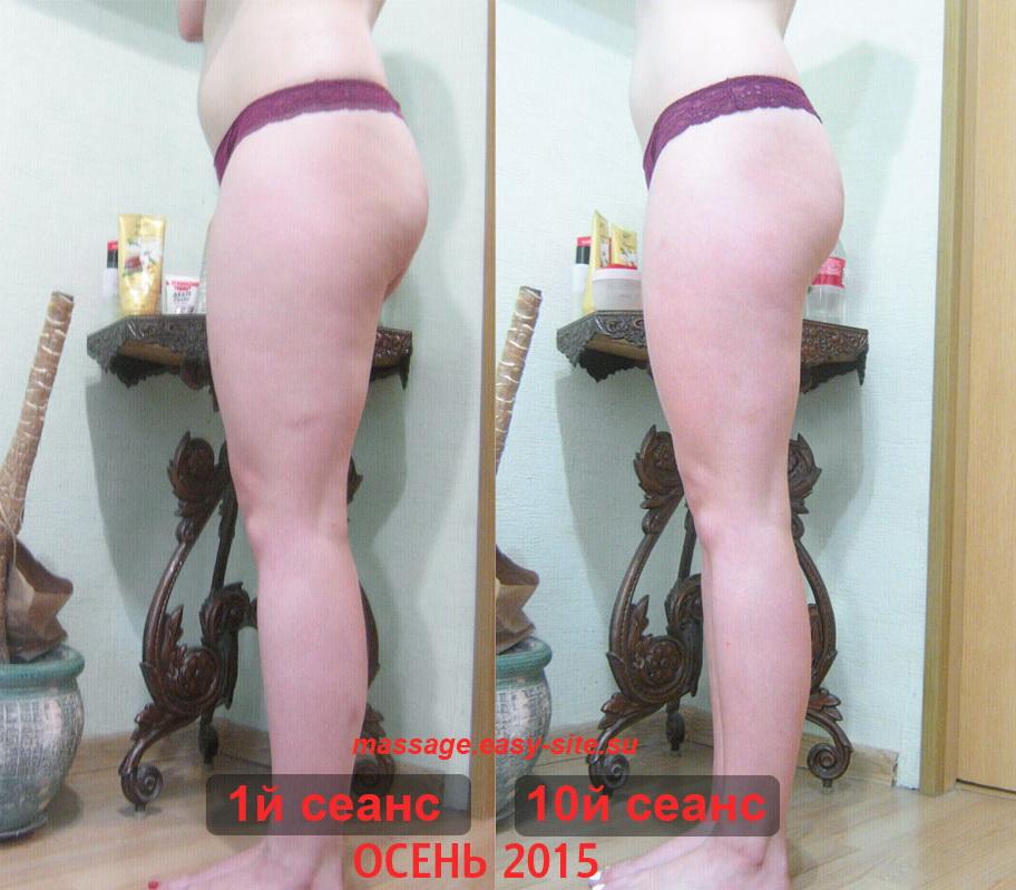 Фото результатов антицеллюлитного массажа Светы 2015