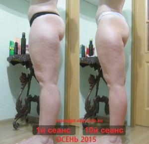 Фото результатов антицеллюлитного массажа Лиды 2015