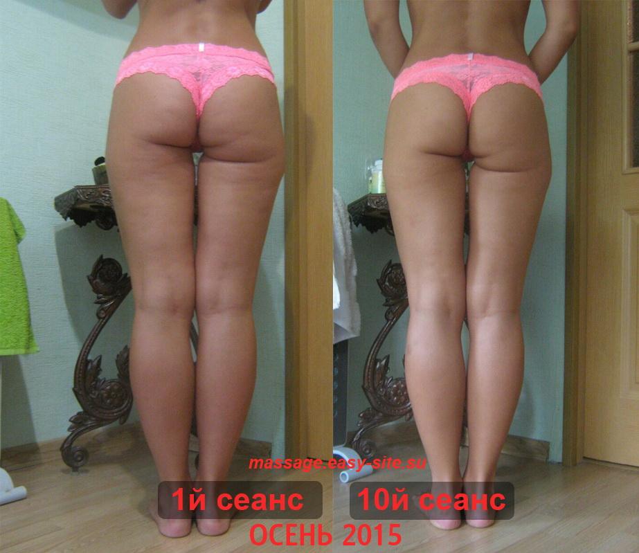 Результаты антицеллюлитного массажа Светланы Минск 2015