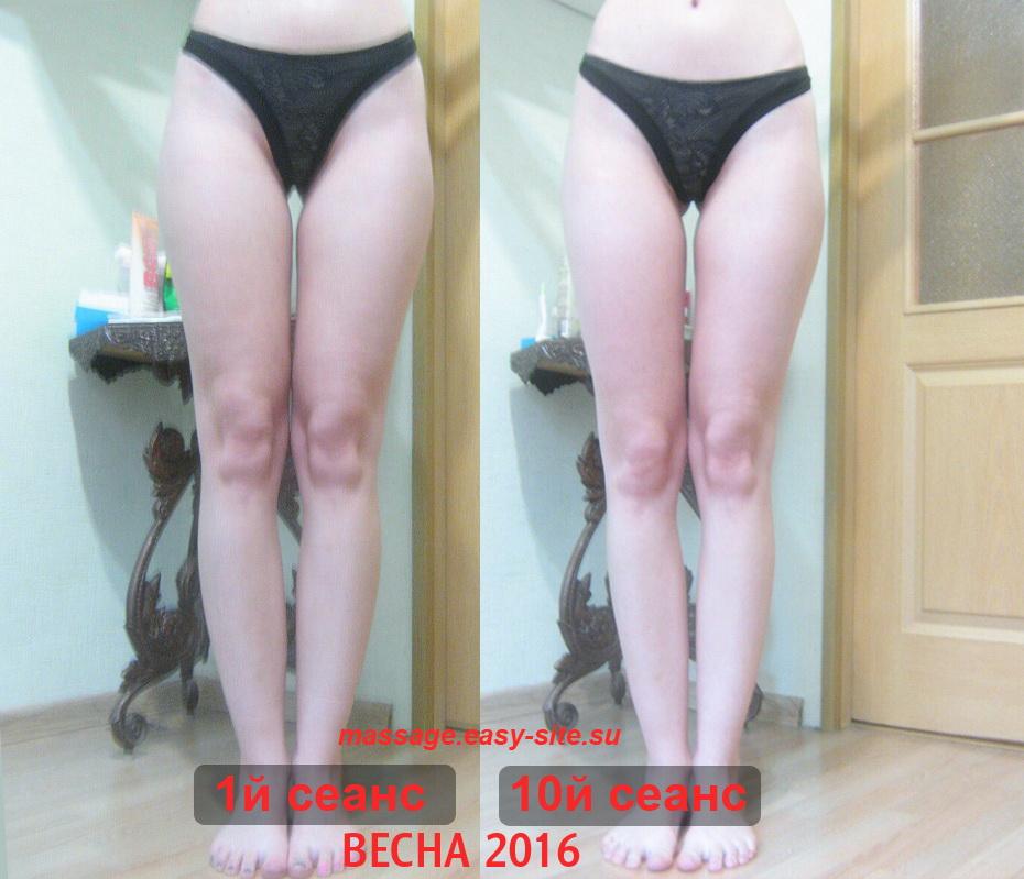 Результаты антицеллюлитного массажа Инги Минск 2016