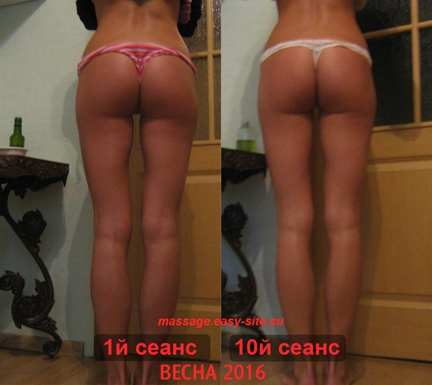 Результаты антицеллюлитного массажа Марты Минск
