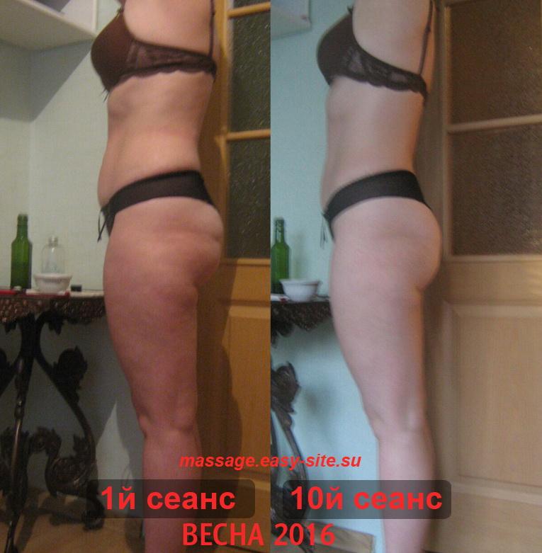 Результаты антицеллюлитного массажа Ольги Минск
