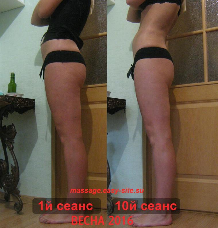 Результаты антицеллюлитного массажа Юлии Минск