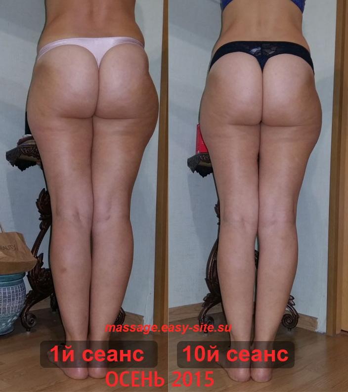 Фото результатов антицеллюлитного массажа Елены 2015