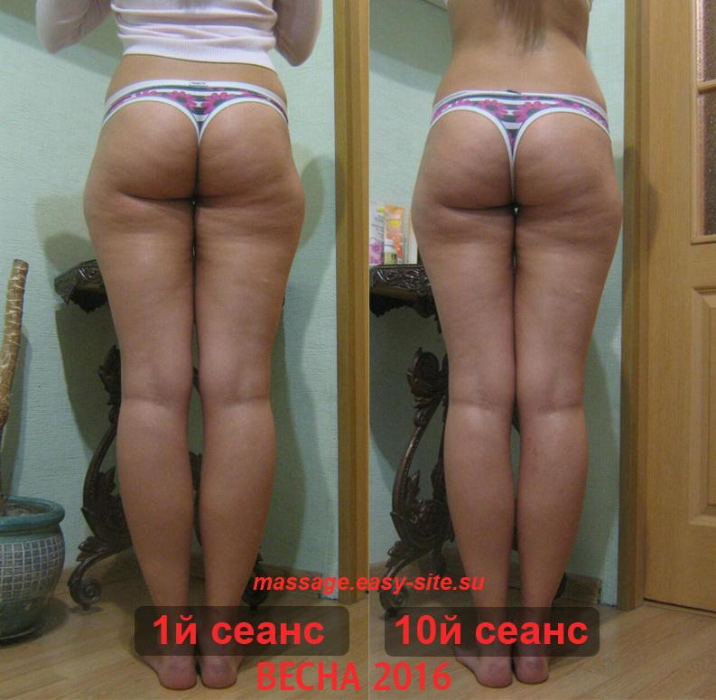 Качественный массаж в Минске 2016