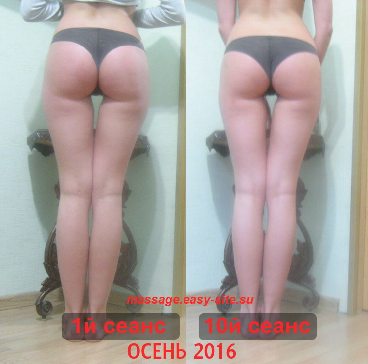 Качественный массаж в Минске, отзывы 2016