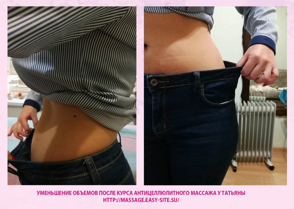 Уменьшение объемов после курса антицеллюлитного массажа у Татьяны