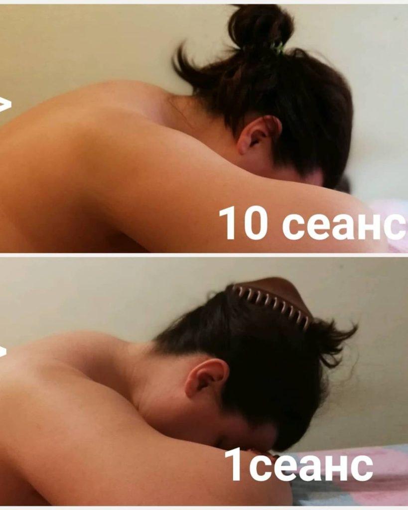 Качественный массаж спины Минск